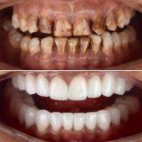 عملية زراعة الأسنان في تركيا