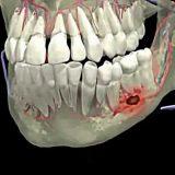 علاج خراج الأسنان و اللثة في تركيا